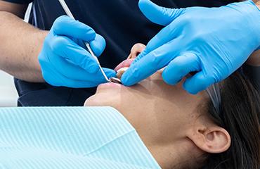 Services teeth bridges