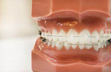Services teeth orthodontics