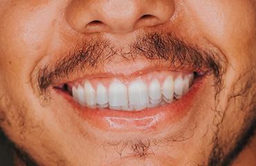 Services teeth splint