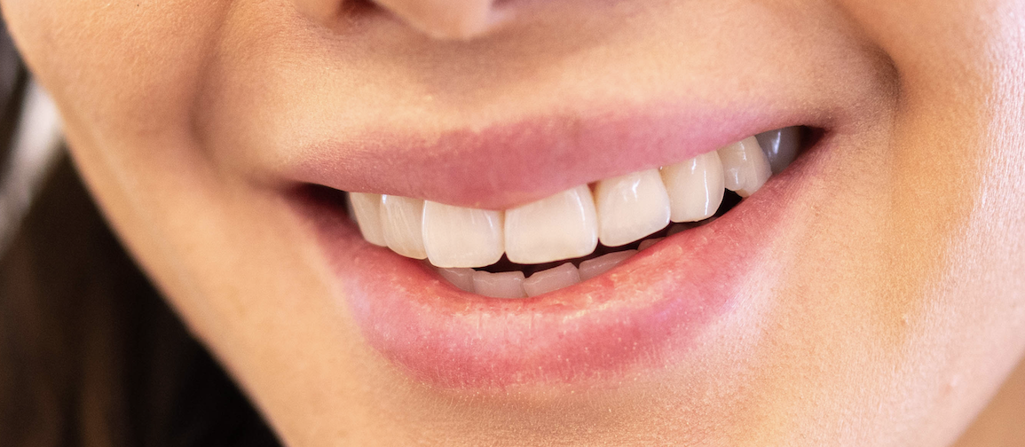 10 Important Questions Answered About Teeth Whitening