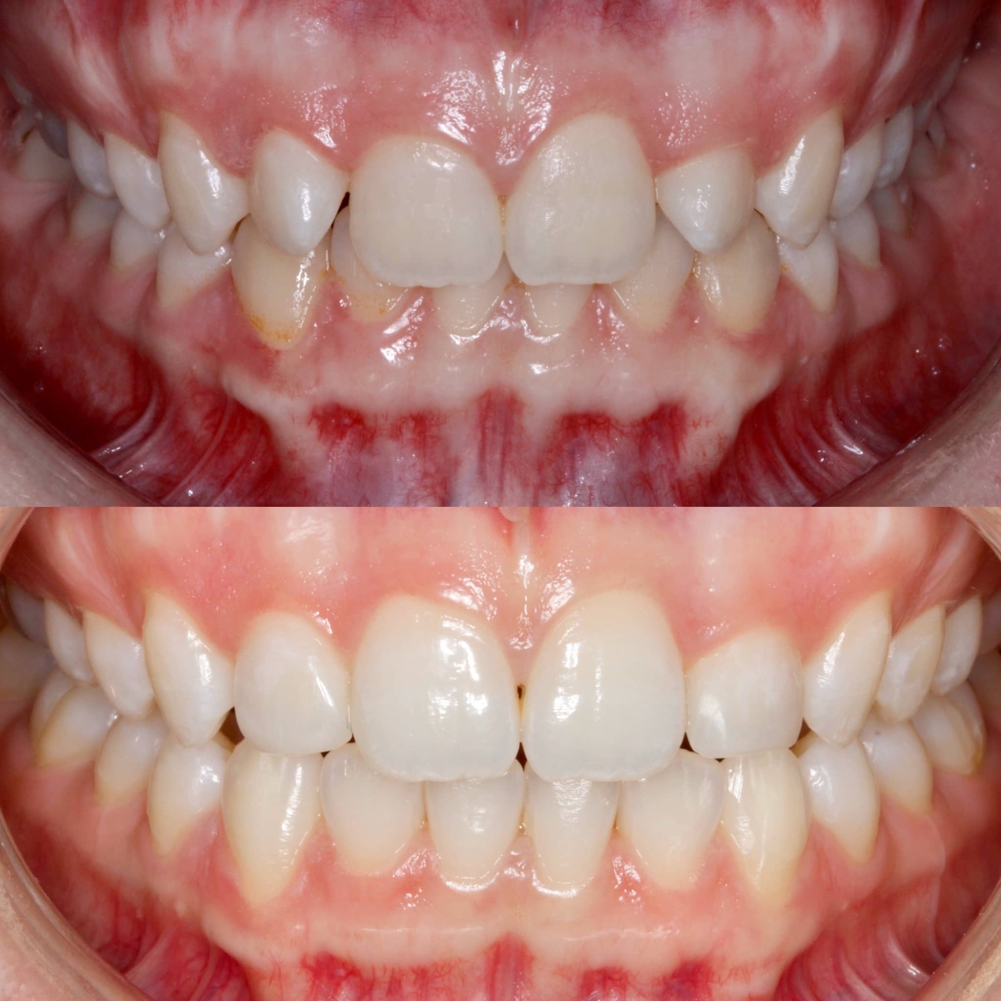 Teeth up close showing what before and after teeth bonding looks like.