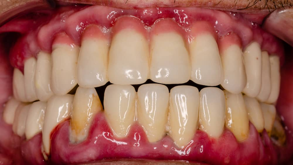 Second stage periodontis showing sore and unhealthy looking gums.
